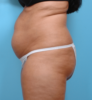Manhattan liposuction before 8